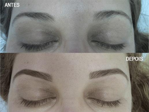 Antes e depois - sobrancelha